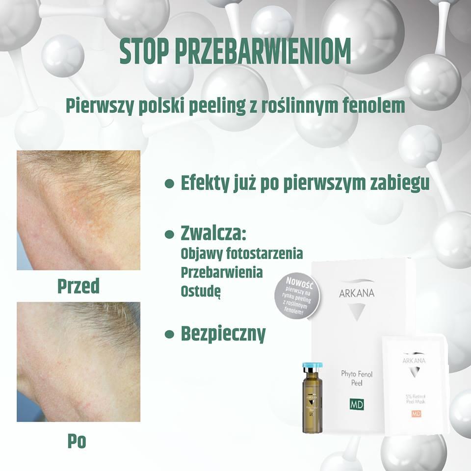 Phyto-Fenol-Peel_n