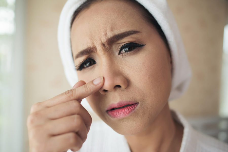 Trądzik u dorosłych – jak się go pozbyć?